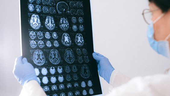 Person viewing brain scans